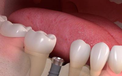 Professionelle Implantatreinigung (PIR)